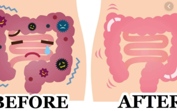 Detoxify Your Body To Stay Healthy And Fit Colon Detox
